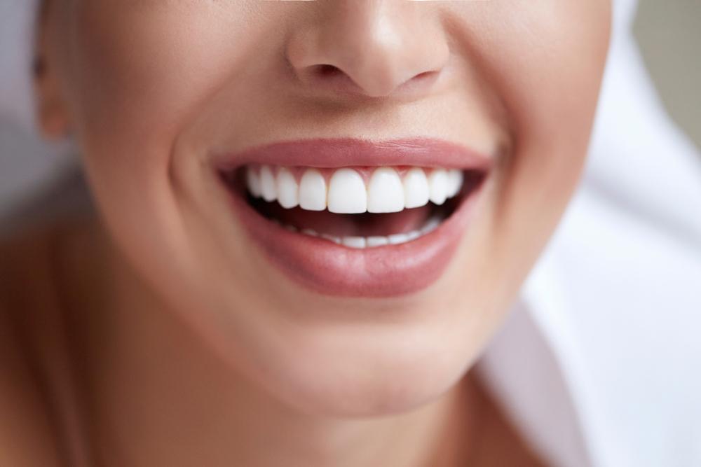 Wybielanie zębów – na czym polega i kto może to robić?