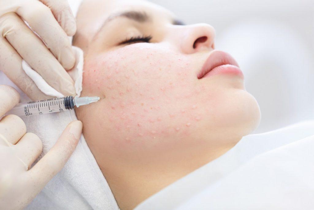 Pacjentka gabinetu medycyny estetycznej Derm-Estetyka podczas zabiegu mezoterapii igłowej twarzy